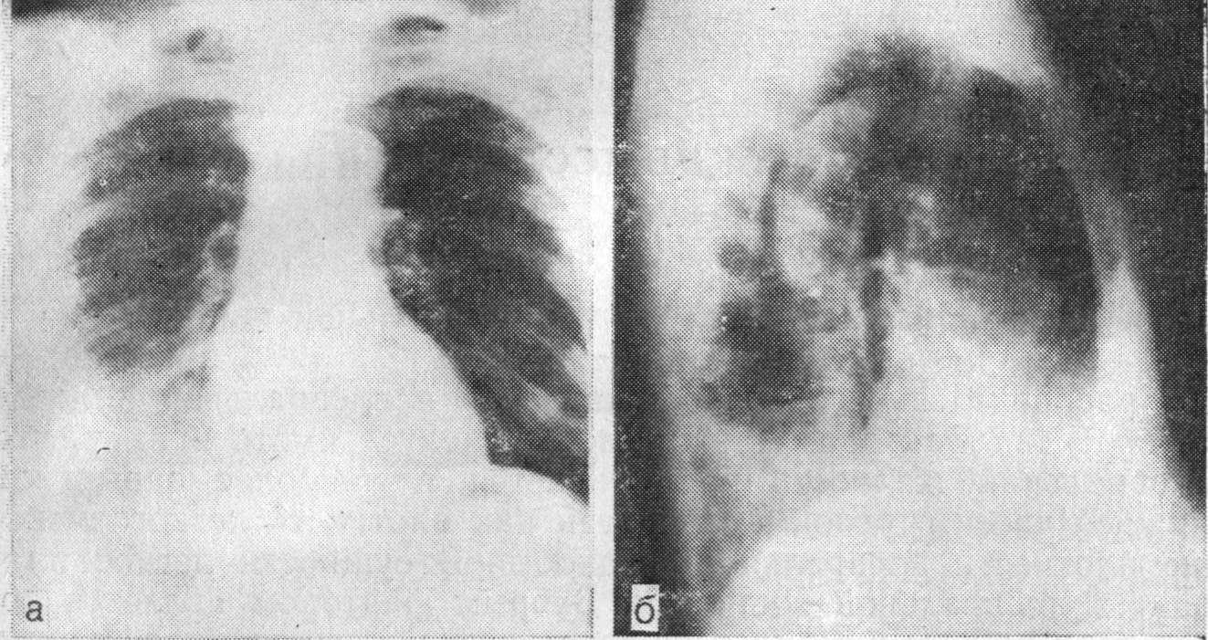 Плевральный выпот, вызванный лекарственными средствами фото